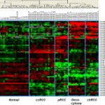 Accurate Molecular Classification of Kidney Cancer Subtypes Using MicroRNA Signature